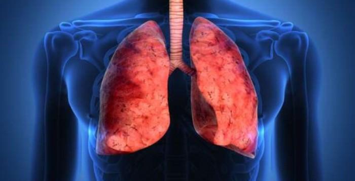 Ο καρκίνος των πνευμόνων θα ξεπεράσει τον καρκίνο του μαστού ως Νο1 αιτία θανάτου των γυναικών