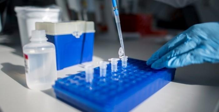 Εμβολιάστηκα, χρειάζεται μετά να κάνω και τεστ αντισωμάτων για να δω αν το εμβόλιο «δούλεψε»; Τι λένε οι επιστήμονες