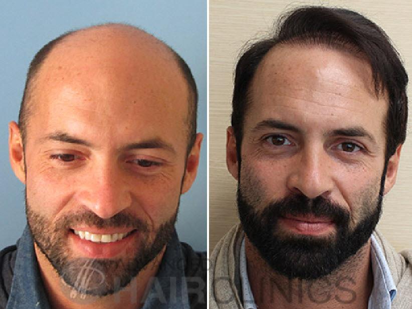 Μεταμόσχευση μαλλιών: Η μεγάλη αλλαγή - Δείτε πώς η εμφύτευση μαλλιών που έκανε διπλωμάτης από την Ουρουγουάη σε Έλληνα πλαστικό χειρουργό, άλλαξε τελείως την εμφάνισή του