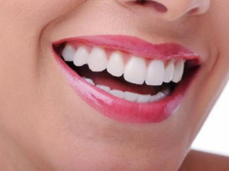 Lifting δοντιών ή αλλιώς Bonding