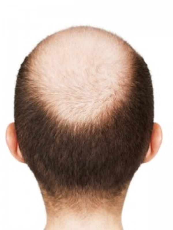 Μικρομεταμόσχευση μαλλιών:Αντιμετώπιση Αλωπεκίας & Φαλάκρας