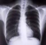Πνευμονολόγος για τρεις ημέρες στο Κέντρο Υγείας