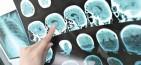 Αυξημένος ο κίνδυνος εγκεφαλικού για όσους δουλεύουν σκληρά