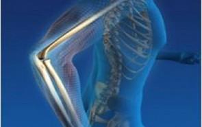 12 συμβουλές για την ενίσχυση των οστών